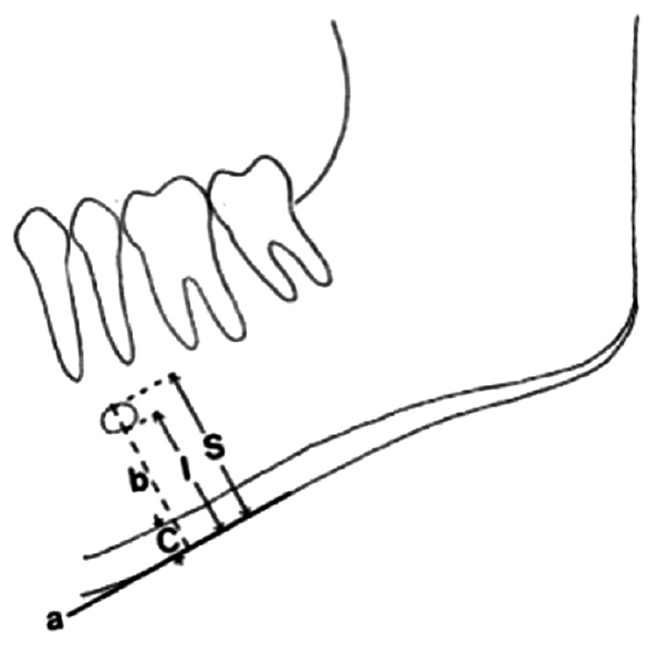 Figure 1: Measurements for superior panoramic mandibular index and inferior panoramic mandibular index
