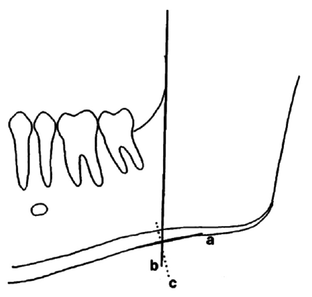 Figure 2: Measurement for cortical width