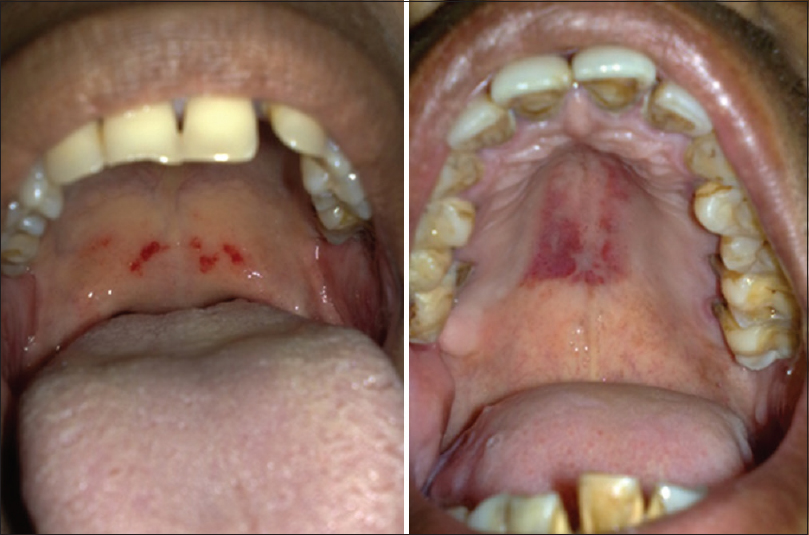 Petechiae from oral sex