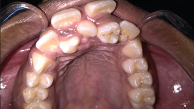 Figure 1: Intraoral view showing three supernumerary teeth with displaced maxillary anteriors