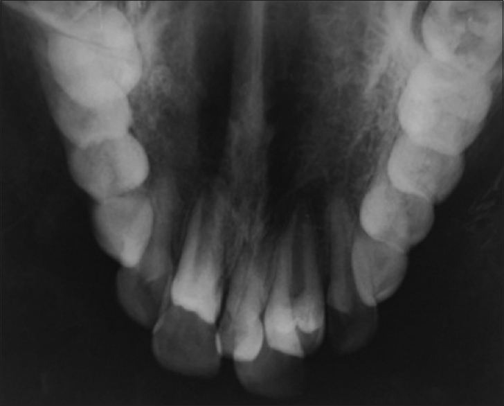 Figure 2: Maxillary occlusal radiograph showing stage of root formation of the supernumerary teeth