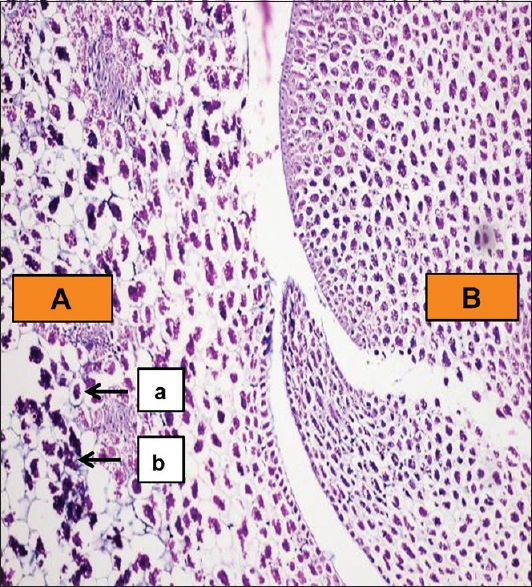 Figure 1: A: Endosperm B: Cotyledon a: Parenchymal cells b: Nutrient material (hematoxylin and eosin-stained section of groundnut under ×10)