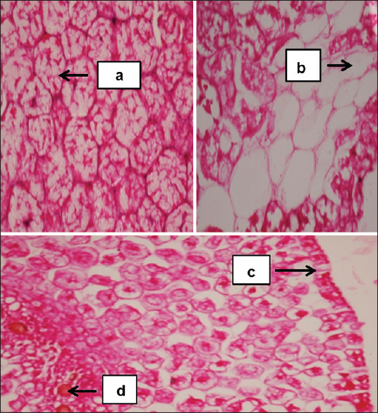 Figure 3: a: Nutrient material b: Clear spaces containing starch c: Epidermis d: Plastid (hematoxilin and eosin-stained section of Turkish gram under ×40)