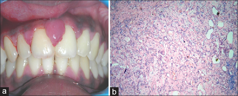 Reactive hyperplastic lesions of the oral cavity: A