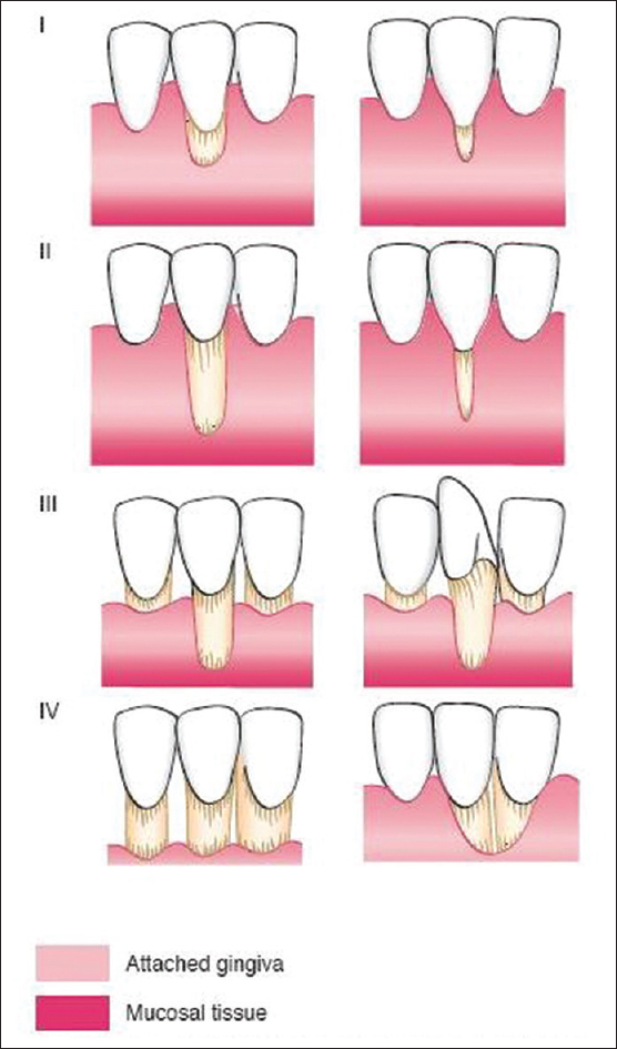 Classification systems for gingival recession and suggestion of a