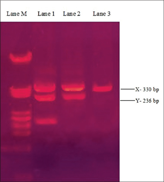 Figure 2: Gel picture showing identification of sex, based on polymerase chain reaction analysis, Lane M showing DNA marker (50–500 bp) used for analysis. Lane 1, Lane 2, shows two (2) bands, one at 330 bp and other at 236 bp; thereby confirming the samples to be male, and Lane 3 shows only a single band, confirming the sample to be a female