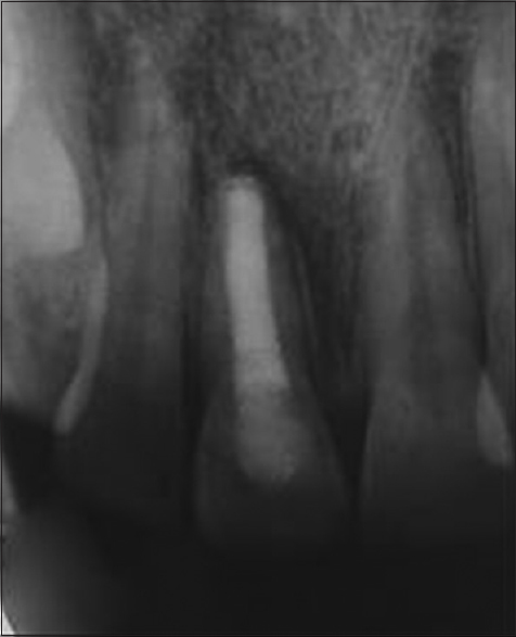 Figure 5: Postoperative radiograph after 4 years