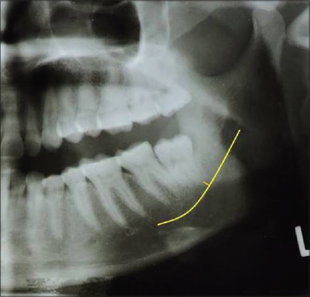 Figure 5: Depicting orthopantomogram of impacted third molar with proximity to inferior alveolar nerve