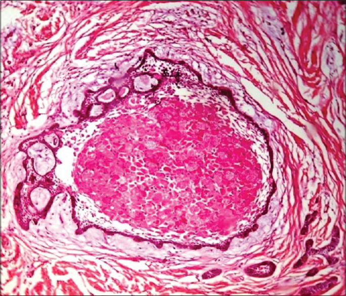 Figure 3: Photomicrograph of granular cell ameloblastoma showing an island of odontogenic epithelium with peripherally placed tall columnar cells and centrally placed eosinophilic granular cells (×10)
