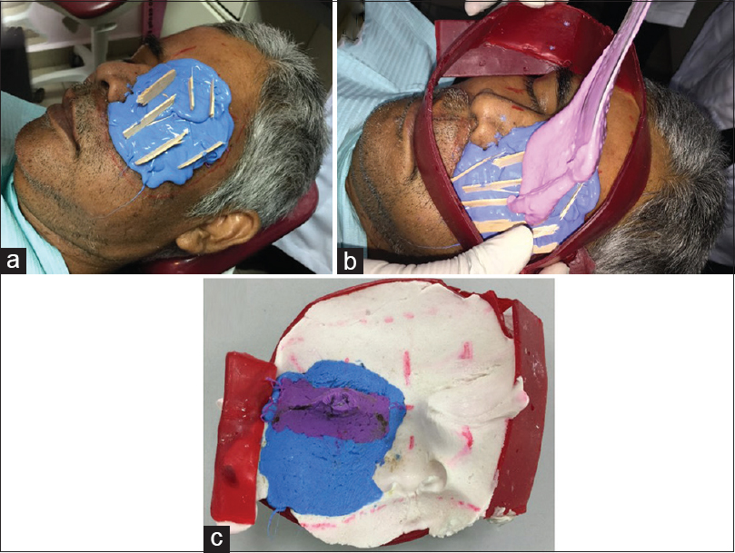 Figure 2: (a) Pouring of light and regular body polyvinyl siloxane impression material. (b) Pouring of alginate over the polyvinyl siloxane impression material inside the facial moulage. (c) Double-impression single tray