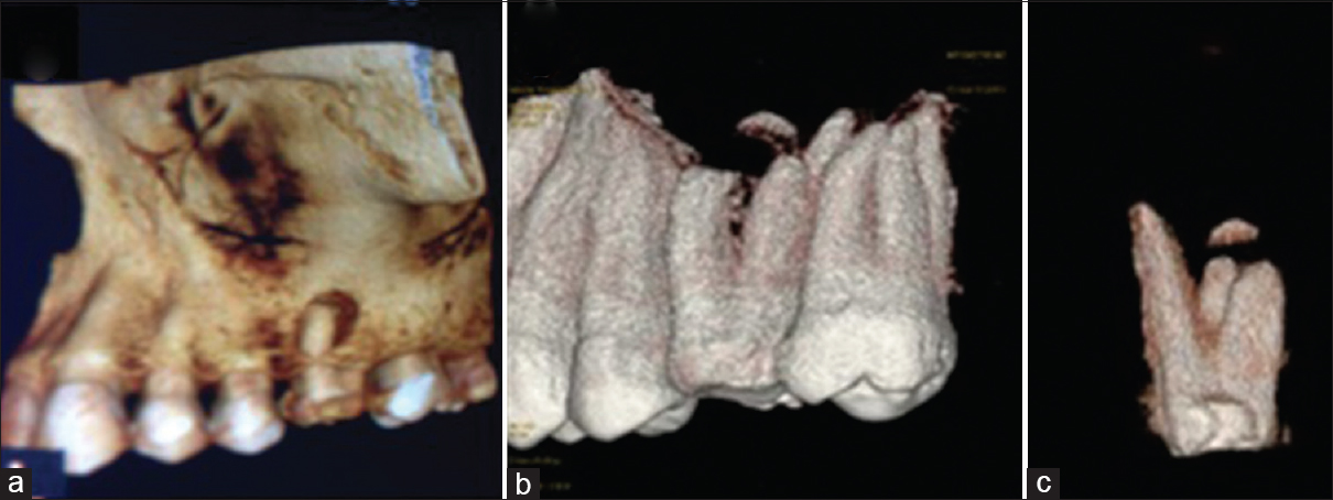 Figure 3: Three-dimensional Cone Beam Computed Tomography images showing (a) perforation of the buccal cortical plate associated with mesiobuccal root, (b and c) deficient mesiobuccal root apex and the separated root tip