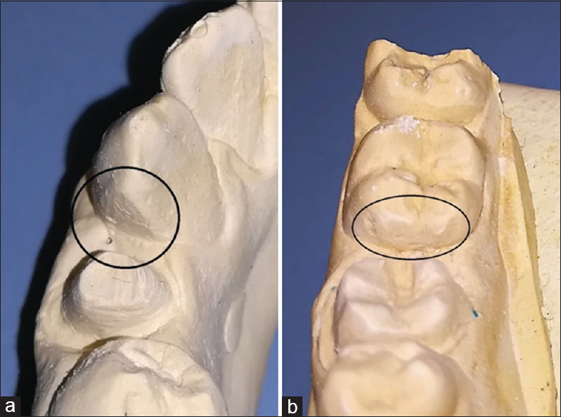 Figure 1: Degree of damage to adjacent tooth with slight damage (a) and obvious damage (b)