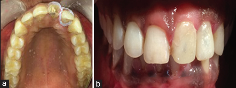 Figure 10: (a and b) Isolation by gingival placement of natural Richmond's crown with respect to 22, placement of fiber post-with respect to 21, and core buildup done with composite resin