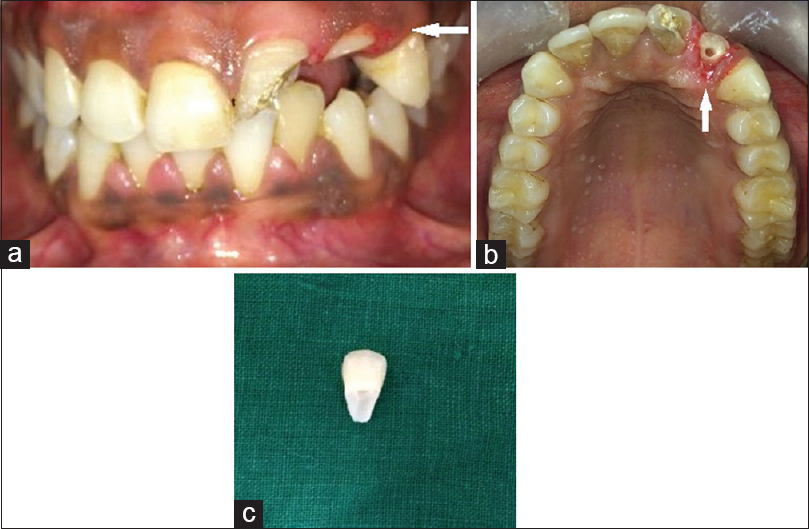 Figure 8: (a-c) Removal of fractured fragment crown lengthening done to expose the extent of fracture