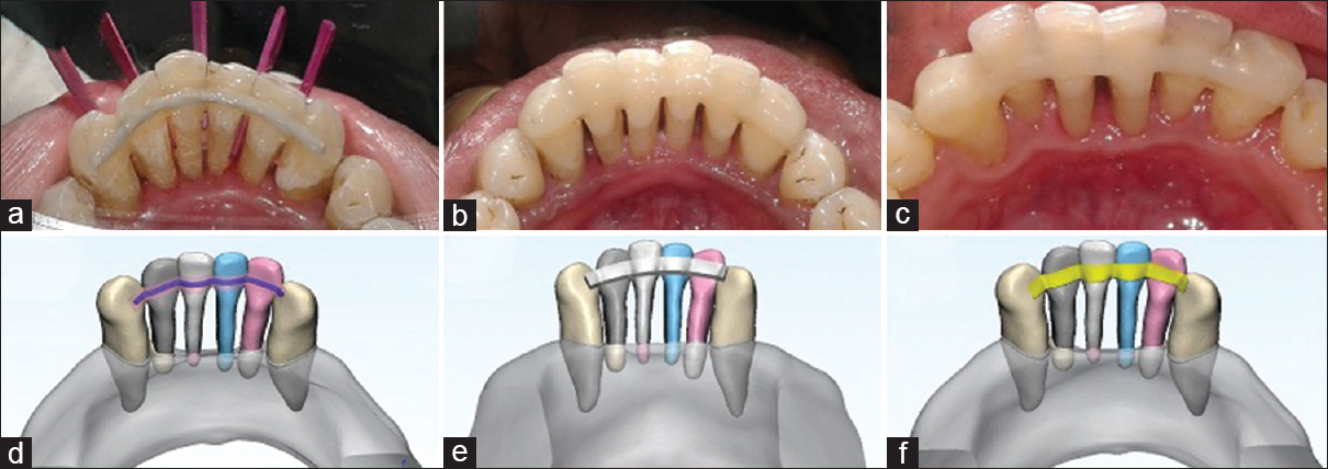 Figure 1: Clinical Picture (a) metal-reinforced splinting, (b) composite resin splinting, and (c) fiber-reinforced resin splinting; three-dimensional simulated model (d) metal-reinforced splinting, (e) composite resin splinting, and (f) fiber-reinforced resin splinting