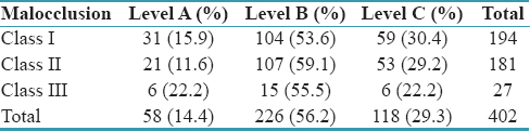 Table 4: Distribution of level of third molar impaction in Class I, Class II, and Class III