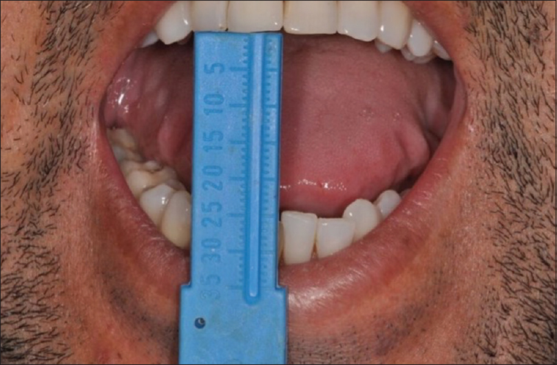Figure 6: Mouth opening after 30 days postoperative