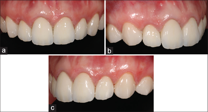 Figure 8:  Final smile after restorative treatment based on digital planning using Cara smile