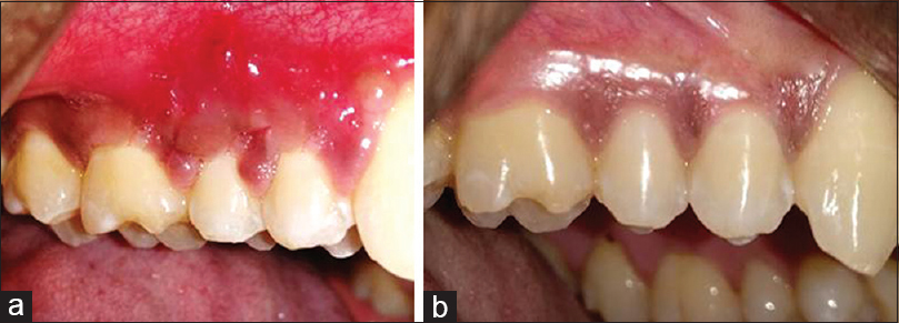 Figure 12: (a) Ten days postoperative. (b) Three months postoperative at PRF site