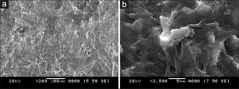 Figure 4: (a) Enamel surface after application of regenerate enamel science toothpaste (under 200 magnification). (b) Enamel surface after application of regenerate enamel science toothpaste (under 3500 magnification)