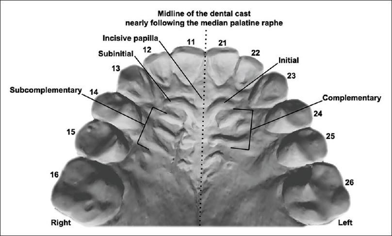 "Figure 1: Illustration of the orthodontic dental cast in occlusal view and the respective palatal rugae. The palatal rugae were classified according to a system previously proposed in the scientific literature.<sup>[11]</sup> According to the system, the palatal rugae on the right of the observer (left side of the dental cast) are described as ""initial"" ( first fold) and ""complementary"" (remaining folds). Similarly, the contralateral rugae are described as ""subinitial"" ( first fold) and ""subcomplementary"" (remaining folds). Based on their shape, the initial and subinitial rugae are coded with a capital letter, whereas the complementary and subcomplementary rugae are coded with a number from 0 to 9 [Table 2]. The combination of letters and numbers culminate in individual palatal rugae patterns coded for each person"