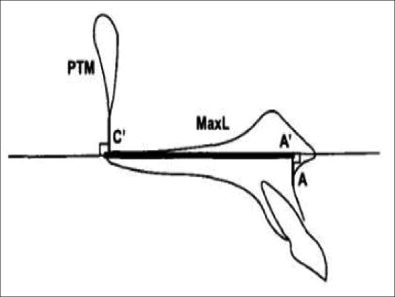 Figure 2: Construction of point A' and c' and determination of maxillary base length