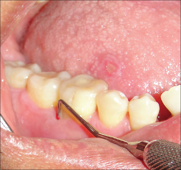Figure 1: Preoperative image – Pocket-probing depth of more than 10 mm with buccal aspect of #46 with pus discharge
